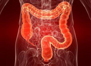 Амебиаз кишечника. Симптомы амёбиаза, диагностика и профилактика