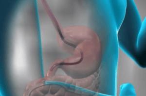 Подготовка к гастроскопии желудка. Как проводится процедура ФГС?
