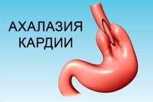 Ахалазия кардии