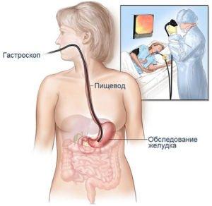 ФГС желудка - проведение и возможные осложнения. ФГС у детей