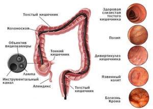 Что такое колоноскопия и как ее делают? Подготовка к процедуре