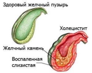 холецистит - возможная причина кислого привкуса