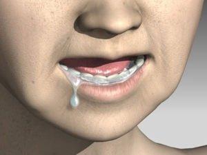 Причины кислого привкуса во рту. Рекомендации врачей