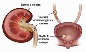 Мочевой пузырь. Болезни, симптомы у мужчин, женщин, строение, признаки заболеваний, лечение