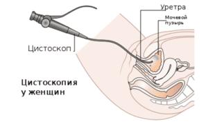 цитоскопия у женщин