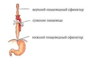 Диета при язве пищевода и лечение народными средствами