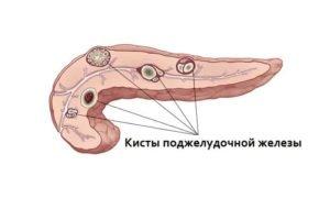 Кисты поджелудочной железы - одна из причин пониженной эхогенности