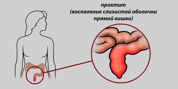 Почему бывает кровь из заднего прохода