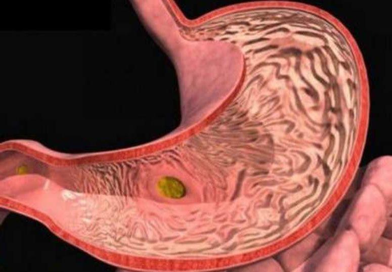 Язва антрального отдела желудка: причины, лечение и диета