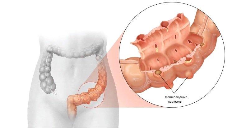 Дивертикулез толстого кишечника - что это такое и как лечить
