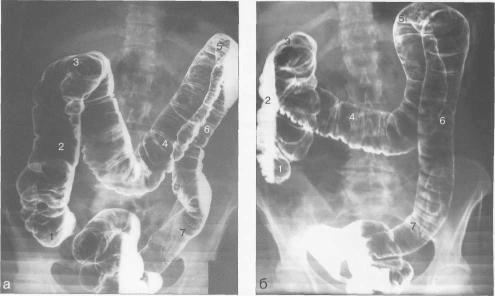 снимок ирригоскопии