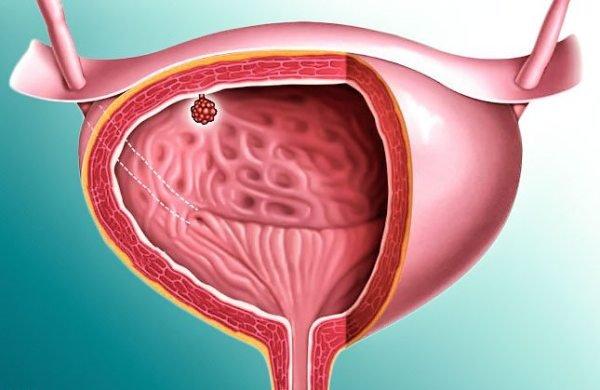 Доброкачественная опухоль мочевого пузыря
