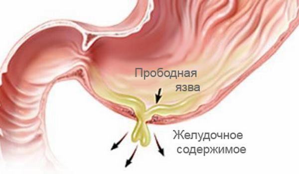 Перфоративная или прободная язва желудка
