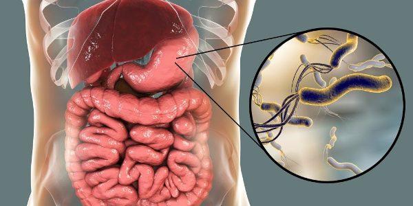 Helicobacter Pylori в желудке