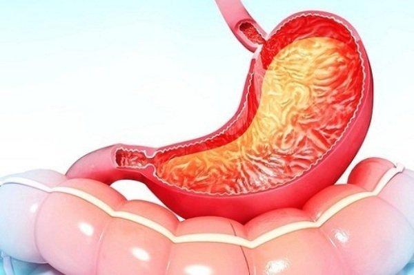 Гастропатия: что такое, симптомы и лечение
