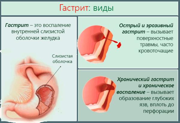 Острый и хронический гастрит