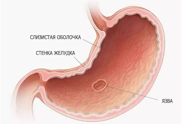 Можно ли умереть от язвы желудка? Сколько живут с язвенной болезнью и оформляется ли инвалидность?