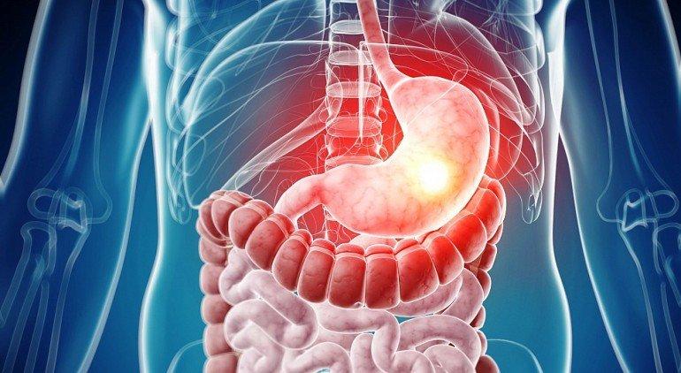 Катаральный гастродуоденит: что такое, причины и лечение