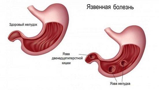 Народное лечение желудка спирт и мед thumbnail