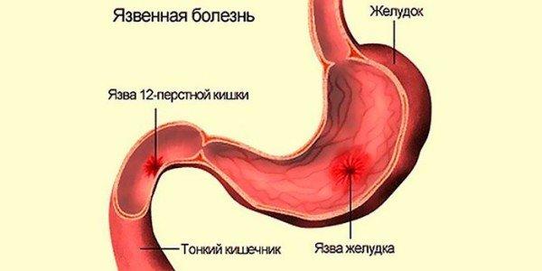 Прободная язва желудка и 12-типерстной кишки