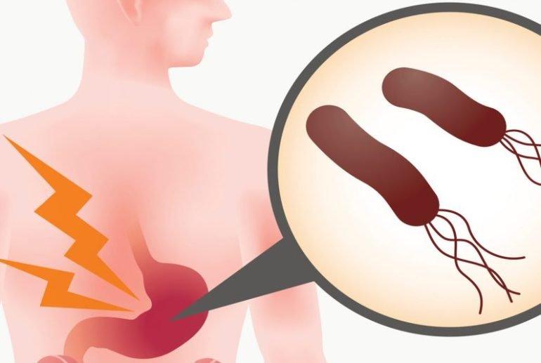 Причины развития гастрита - от чего появляется заболевание