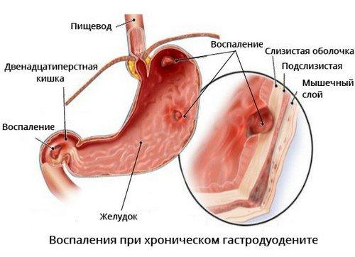Хронический гастродуоденит - что это, причины и клинические рекомендации