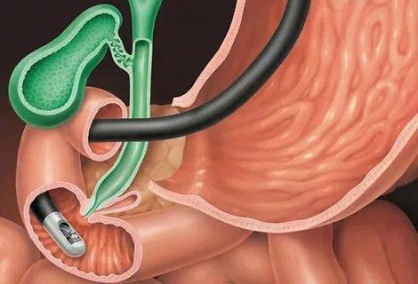Хронический гастродуоденит. Гастродуоденоскопия слизистой