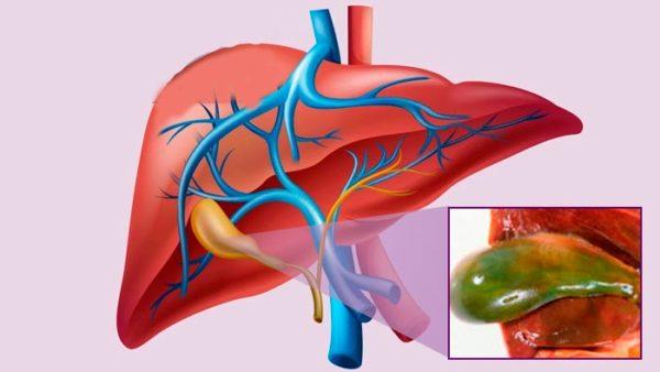 эмпиема - возможное осложнение желчного холецистита