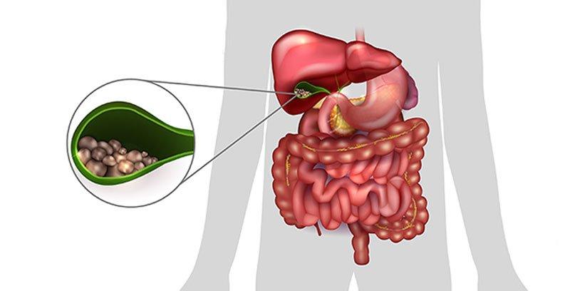 Осложнения холецистита