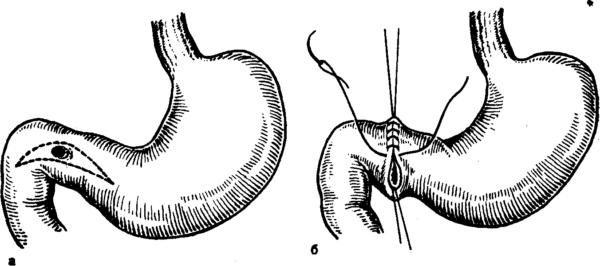 Причины, симптомы и лечение прободной язвы двенадцатиперстной кишки