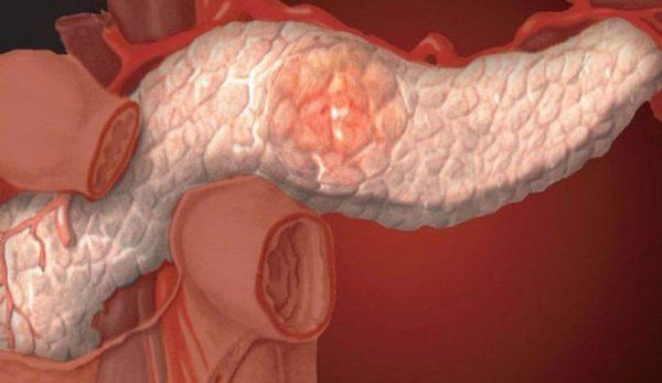 панкреатит - возможное осложнение желчного холецистита