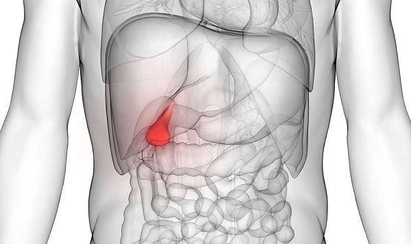 холецистит очень распространен, им страдают около 20% женщин и 10 % мужчин среднего возраста