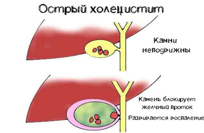 Острый холецистит у взрослых