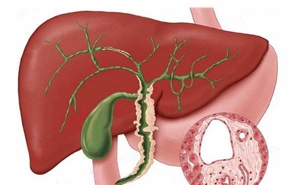 Холангит - возможное осложнение желчного холецистита