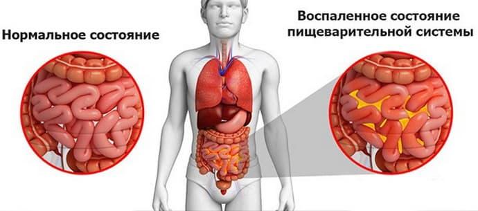 гнойный разлитой перитонит - возможное осложнение желчного холецистита