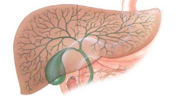 Деструктивный холецистит: что такое, виды и лечение