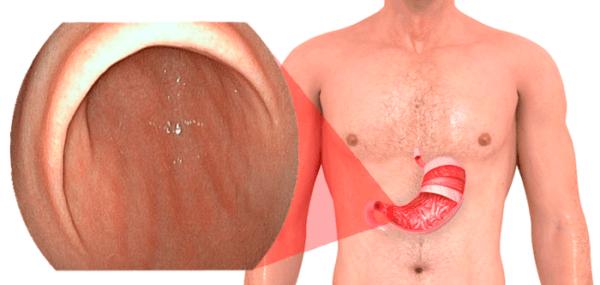 Очаговый поверхностный гастрит диагностируется у каждого второго человека среднего возраста, заболевание представляет собой хроническую форму гастрита.