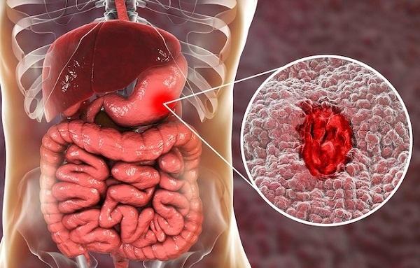 Лечение язвы желудка в домашних условиях