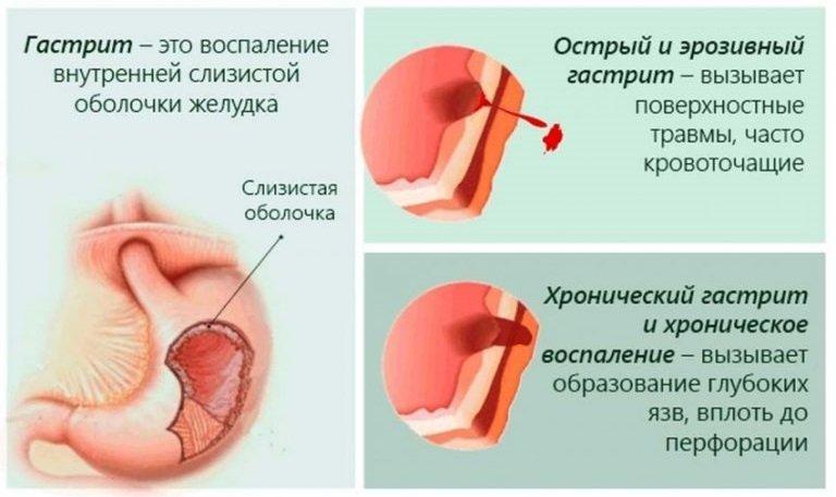 гастрит бывает острым и хроническим