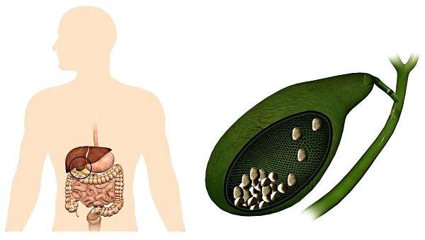 Симптомы и признаки холецистита у женщин и мужчин
