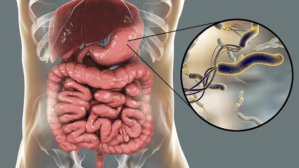 частой причиной возникновения гастрита считается присутствие в организме человека Хеликобактер пилори