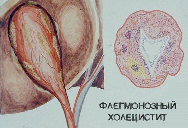 Флегмонозный холецистит: причины, методы лечения и возможные осложнения