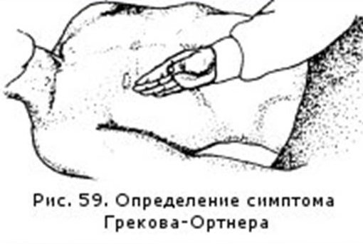 Специфический симптом Ортнера при холецистите