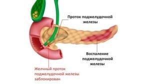 Причины и признаки панкреатита у мужчин