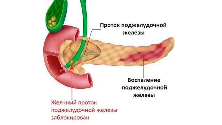 О чем говорит и как лечить рвоту при панкреатите