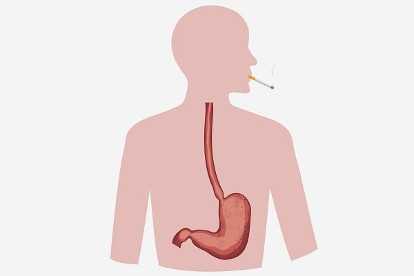 Курение при язве желудка