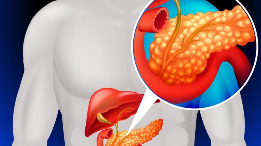 Гнойный панкреатит: симптомы, лечение, диета и прогноз