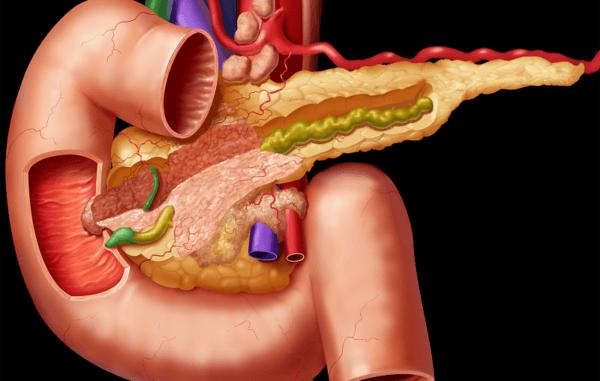 Паренхиматозный панкреатит: патогенез, методы лечения и профилактика
